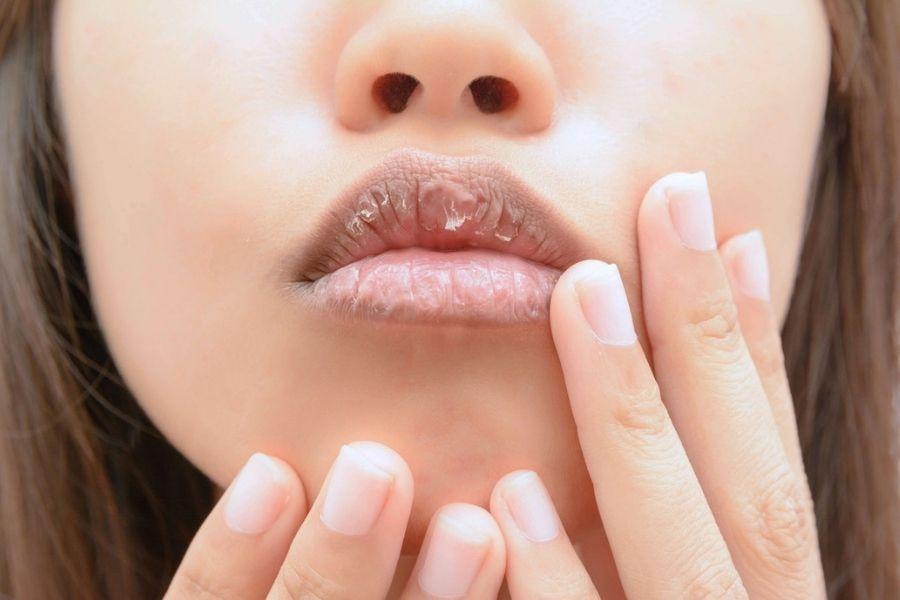 Khô môi